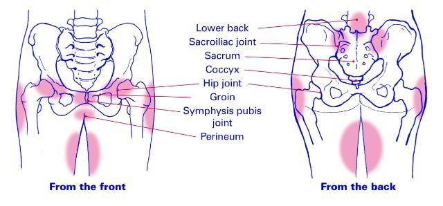 Foglossning gravid ont i ryggen bäckenet