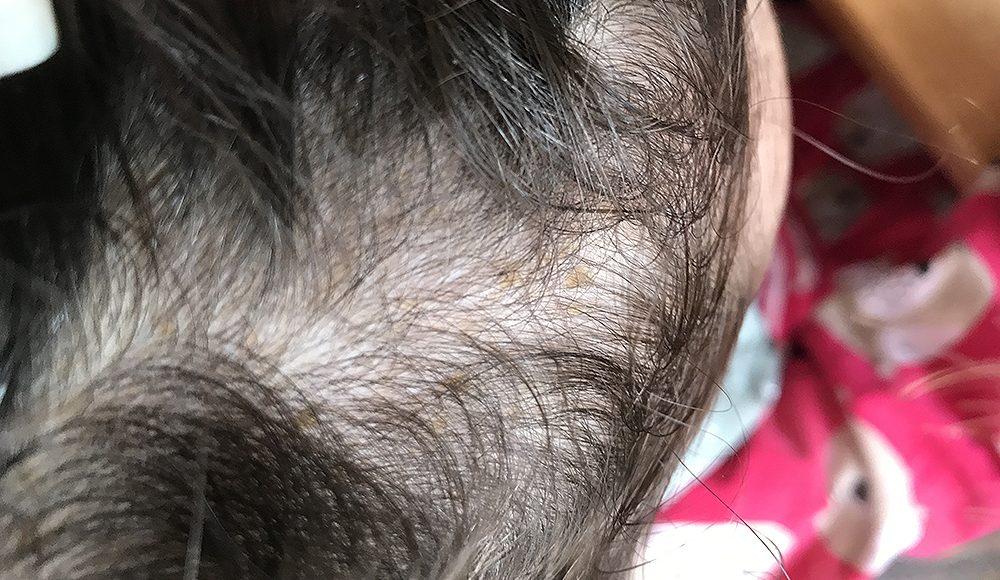 mjäll hårbotten barn