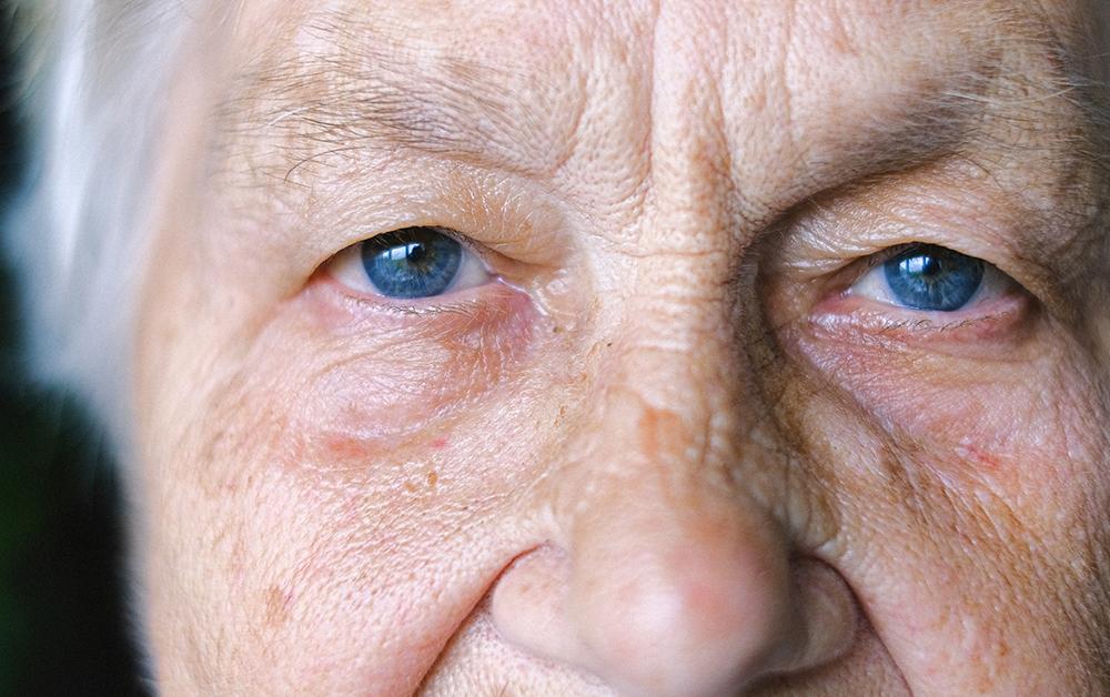 ögonfärg ärftlighet blå ögon