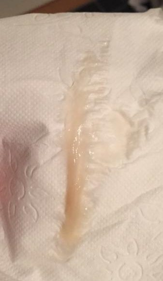 slempropp rosa