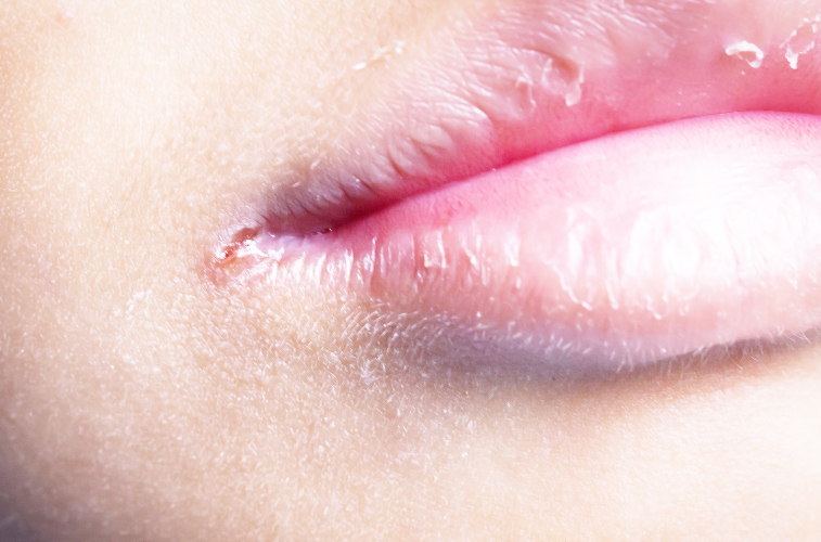 tecken på järnbrist symptom sår i mungipan vitaminbrist