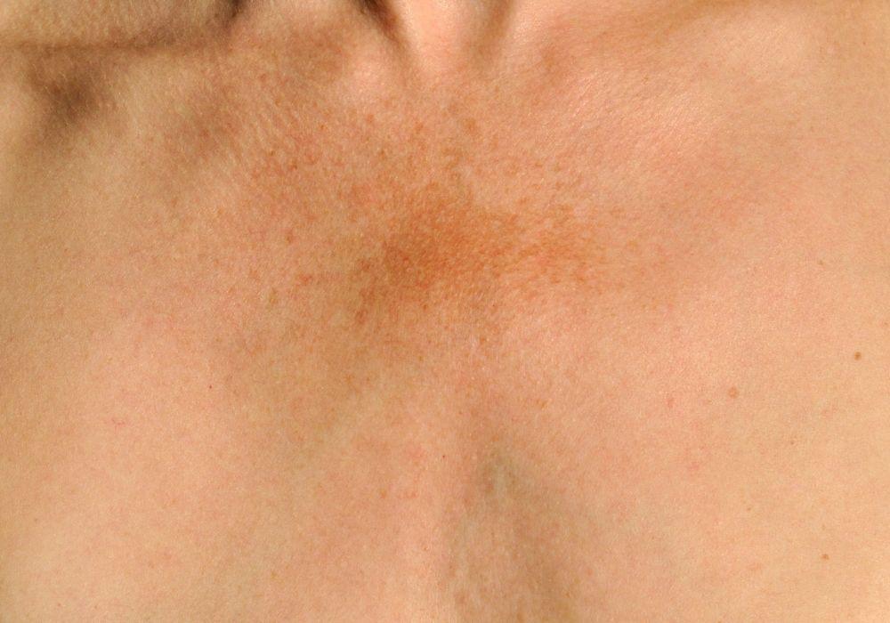 Bruna fläckar på bröstet gravid