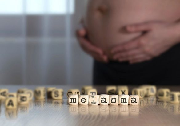 Pigmentfläckar gravid melasma