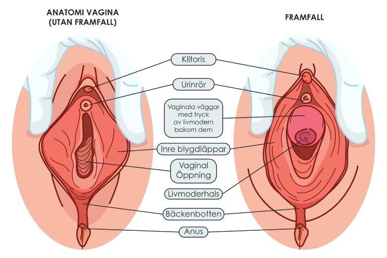 Framfall efter förlossning graviditet