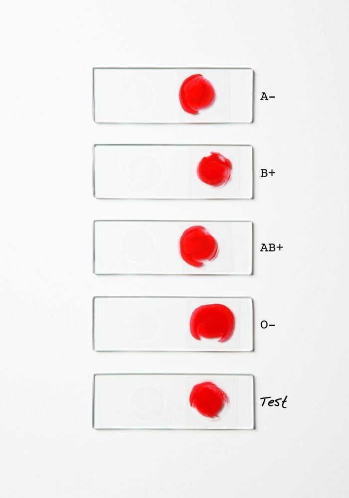 Rh-systemet rh faktor blodgrupp + -